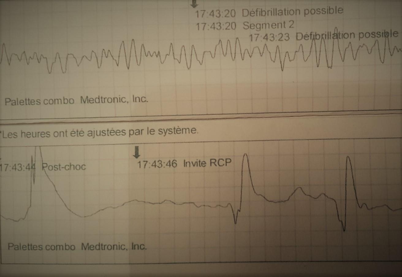 défibrillateur semi-automatique - Restenvie