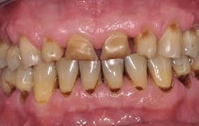 Arrêts cardiaques chez les dentistes